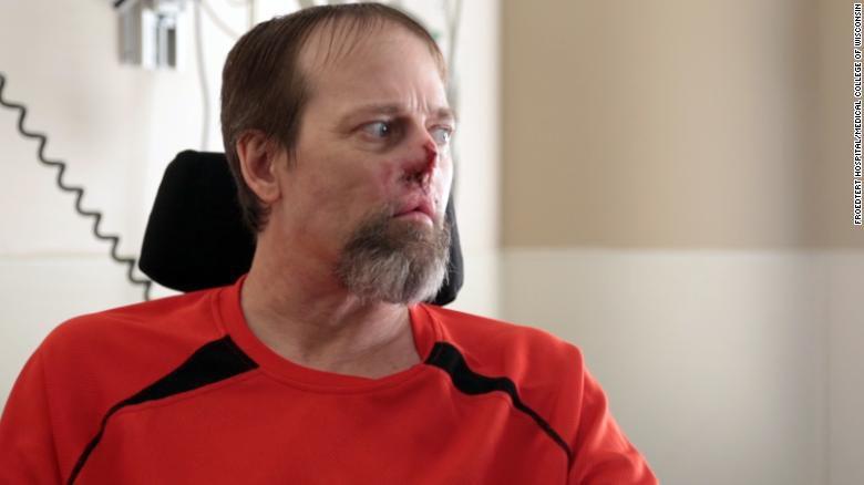 Este hombre quedó mutilado por una bacteria que contrajo de su perro
